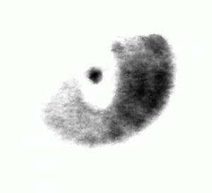 EINAUGEN logo